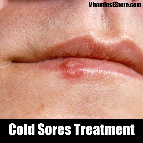 herpes pictures and cold sores pictures verywellhealthcom - 480×480