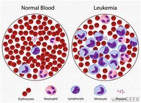 Blood (Acute Myeloid Leukemia)