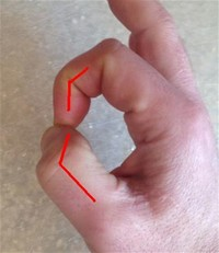 a Weak Grip in the Affected Hand
