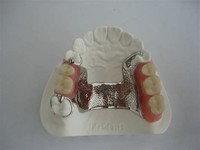 Cast Metal Removable Partial Denture