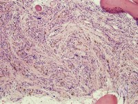Bone Marrow Fibrosis