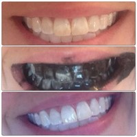 Natural Whitening Tooth & Gum Powder With Activated Charcoal