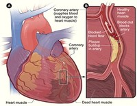 Ischemic Heart Disease, or Coronary Artery Disease