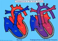 I-Transposition of the Great Arteries