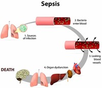 Sepsis, a Severe Blood Infection
