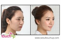 Facial Contouring: Rhinoplasty, Chin, or Cheek Enhancement