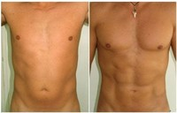 Body Contouring: Tummy Tuck, Liposuction, Gynecomastia Treatment
