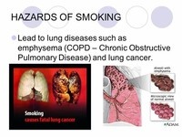 Lung Disease Such as Emphysema