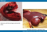 Haemangiomas are a Build