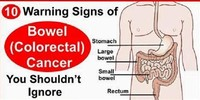 Bowel Cancer (see Colorectal Cancer)