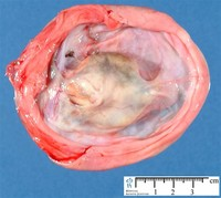 Teratoma of the Ovary