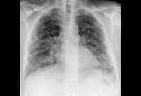 Lung Fibrosis or Pulmonary Fibrosis