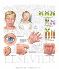 YourChild: Down Syndrome (Trisomy 21)