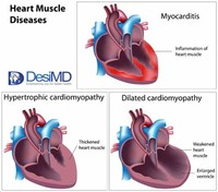 Cardiomyopathies (Diseases That Damage the Heart Muscles)