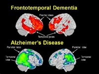 Frontotemporal Dementia (Pick's Disease)