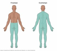Paraplegia, Which Affects Both of Your Legs