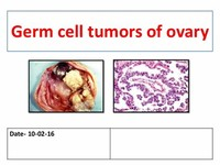 Germ Cell Carcinoma Tumors