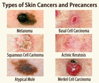 Basal Cell Carcinoma (see Skin Cancer)