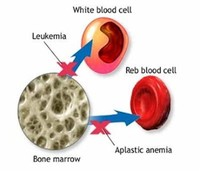 Anemia Overview