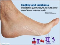 Numbness in the Toes, Feet, or Legs