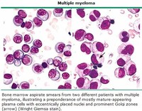 Bone Marrow Cancer (see Multiple Myeloma)