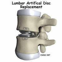 Spinal Disc Replacement