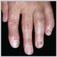Distal Interphalangeal Predominant (DIP)