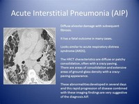 AIP: Acute Interstitial Pneumonia