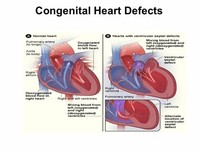 Heart Defects Present at Birth