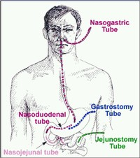 Jejunostomy Feeding