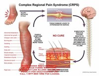 Chronic Regional Pain Syndrome