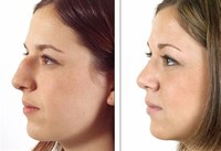 Cosmetic Rhinoplasty Procedures