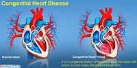 Healthy Heart Function What is it?