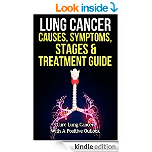 Lung Cancer Causes, Symptoms, Stages & Treatment Guide ...