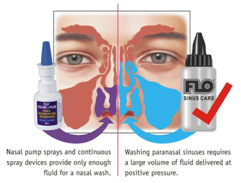 Sinus Irrigation for Nasal Congestion