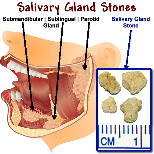 submandibular gland stone