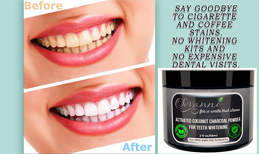 All About Whitening Teeth After Invisalign Can Charcoal Whiten